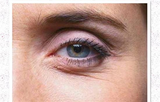 眼部祛皱哪里做 万州丽星整形医院激光除皱价格贵不贵呢