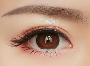 怎么才能去眼袋 丹东诗莉花整形医院吸脂去眼袋的特点有哪些