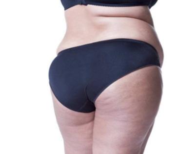 湛江华美整形臀部吸脂多少钱 快速改善下垂肥臀