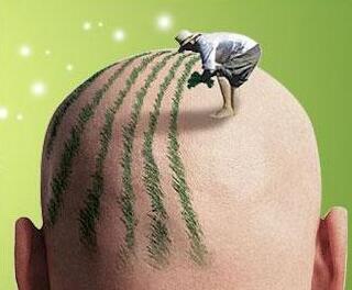 昆明碧莲盛做头顶植发效果怎么样 价格贵不贵