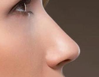 歪鼻矫正在手术后的形状 长沙晶肤整形医院歪鼻矫正效果好吗
