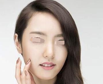 浙江绿城医院整形科鼻头缩小手术过程是怎么样的
