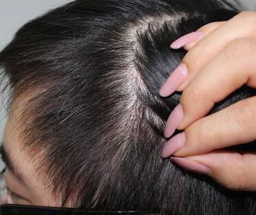 植发医院哪家好 西安美立方做疤痕植发多少钱