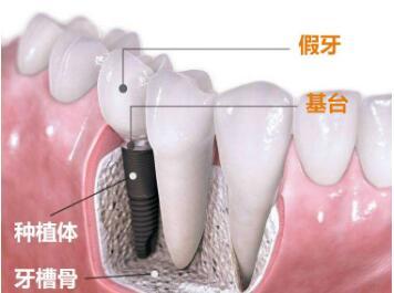 广州种植牙医院排名  广州圣贝牙科整形医院种植牙优点