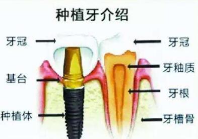 成都种植牙哪家好  种植牙齿的优势有哪些