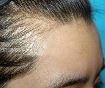 植发发际线哪里更靠谱 郑州二七医院种植发际线需要多少钱