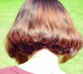 怎样植发 上海莱森植发医院头发加密过程详解