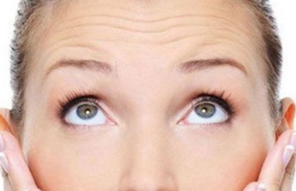 长春韩合爱心整形医院电波拉皮全面部除皱术有何优势 术后有不良反应吗