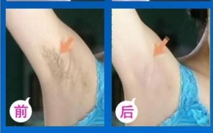 脱毛对比图 汕头华美整形医院激光腋下脱毛价格贵吗