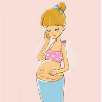 怎么去掉肚子上的妊娠纹 成都华颜整形医院去妊娠纹价格