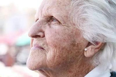 温州雅美姬整形怎么样 激光能去老年斑吗要做几次