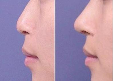 北京隆鼻价格表 北京英煌整形医院假体隆鼻效果自然吗