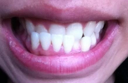 地包天整牙怎么做 西安百思美口腔整形医院地包天矫正年龄