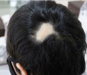 好的植发医院是哪家 北京武警三院做疤痕植发好吗