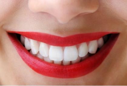 做烤瓷牙疼吗 天津欢乐口腔门诊部烤瓷牙的优点