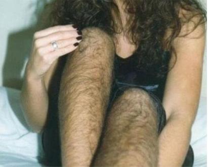 北京延世整形医院激光脱毛的效果 腿部脱毛贵吗
