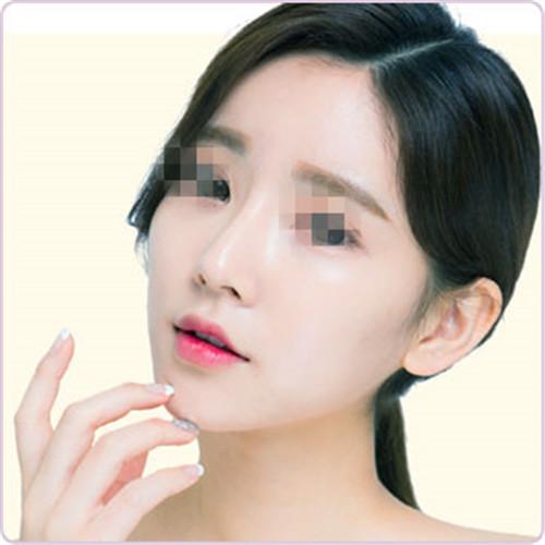 成都韩美整形医院自体软骨隆鼻手术费用 不惧揉捏 美观自然