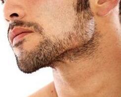 南京雍禾植发官网 胡须种植效果如何大概多少钱