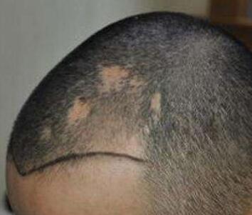 头上疤痕植发多少钱 宁波壹加壹植发医院怎么样