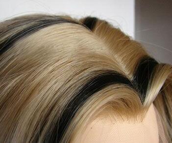 头发植发哪里好 宁波美莱做美人尖种植价格是多少