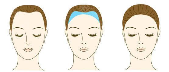 厦门银河毛发种植医院种植发际线改变脸型 华丽蜕变