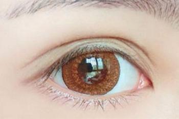 什么是割双眼皮 珠海华美整形美容医院好吗