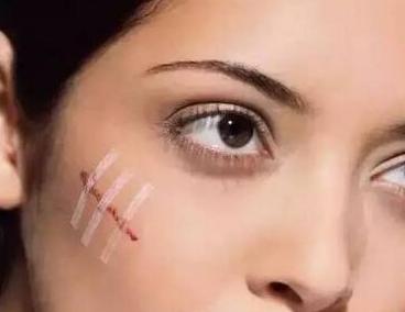 北京空军总医院烧伤整形科专业吗 激光祛疤痕要治疗几次