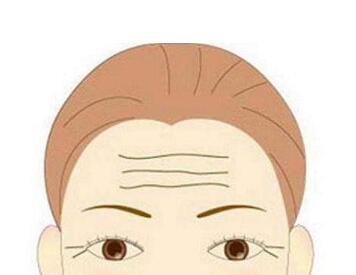 无锡爱思特整形医院激光去抬头纹效果能维持多久  有哪些禁忌症呢