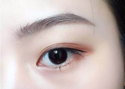 埋线双眼皮恢复时间 宁波瑞亚整形手术多少钱
