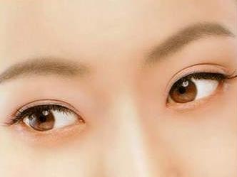 什么人适合开眼角 开眼角整形一般多少钱