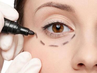 江阴眼袋手术需要多少钱  江阴艾尔美整形医院激光祛眼袋手术优点