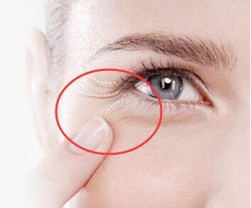 有眼角纹怎么办 焦作金华整形医院做激光去眼角纹能维持多久