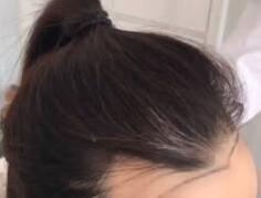 广州植发哪家好 美人尖种植需要多少钱