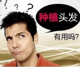 秃头植发哪里比较好 北京做头发种植会很贵吗