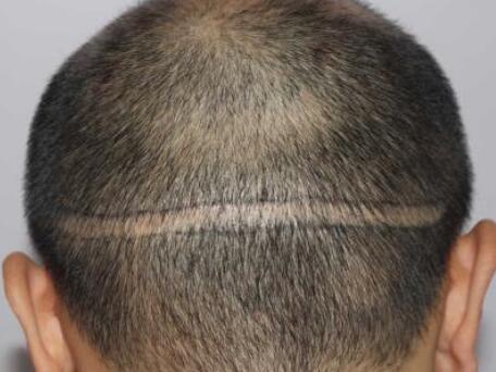 石家庄友谊植发科能进行疤痕种植吗 收费贵不