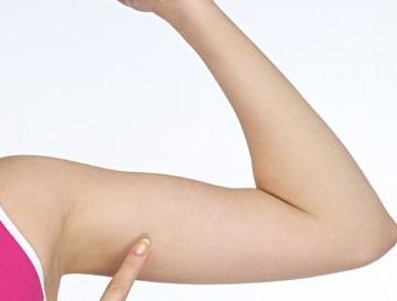 漳州美博士医学整形医院正规吗 手臂粗要怎么减