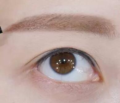 植发失败案例 上海碧莲盛做眉毛种植失败修复多少钱
