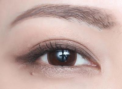 大同割双眼皮多少钱 做全切双眼皮哪家医院好