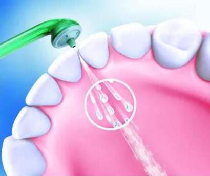 重庆爱思特医院口腔科洗一次牙齿要多少钱 超声波洗牙优势