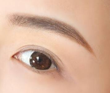 广州雍禾植发怎么样 做眉毛种植需要多少钱