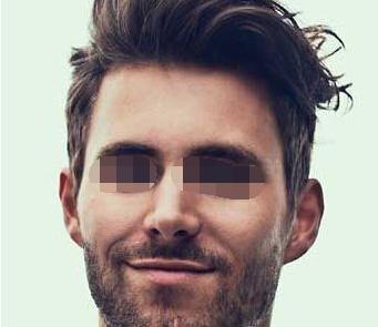西安美立方整形医院植发整形科胡须种植怎么样
