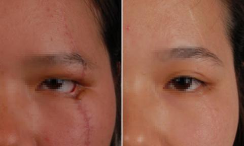 激光去除疤痕手术有效吗 铜陵黄雷整形医院激光祛疤价格