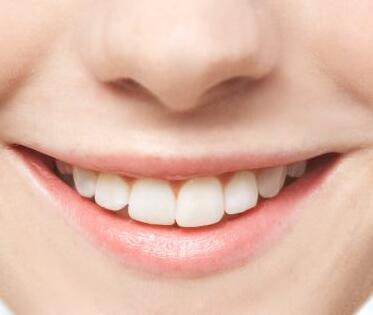 运城现代佳美口腔医院种植牙大概多少钱