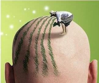 西安美立方整形医院头发种植的过程是怎样的