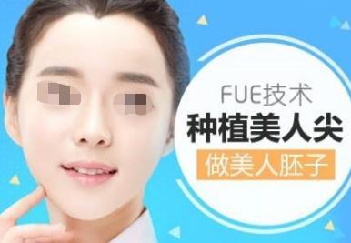 武汉协和医院植发科美人尖种植 让你气质瞬间提升