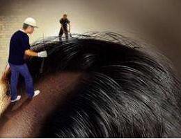 如何治疗斑秃 杭州华山连天美做头发种植优势是什么