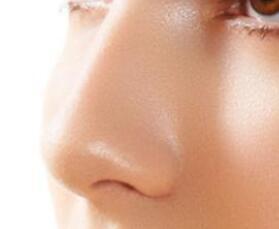 鼻翼太大怎么办 阳泉韩亚做鼻翼缩小术得多少钱