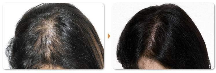 合肥新生植发医院头发种植 给你漆黑有光泽的秀发