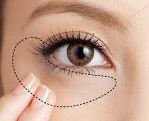 消除眼袋的好方法是哪种 江西武警医院整形科激光去眼袋优势