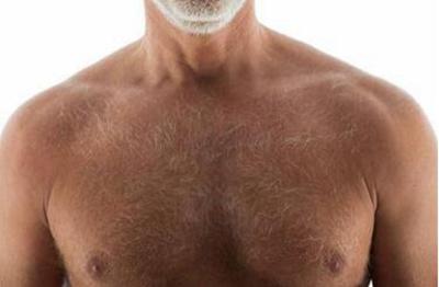 西安哪里可以种胸毛 胸毛种植有没有风险要多少钱